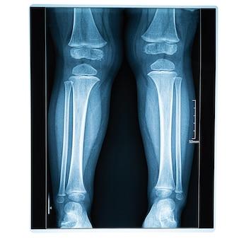 Imagem de raio-x de pernas, conceito de lesão na perna