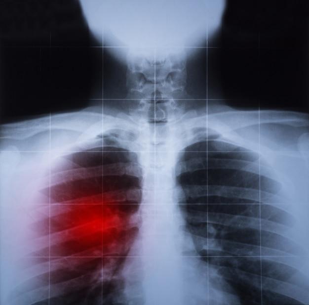 Imagem de raio-x do peito e pulmão doença destacada em vermelho