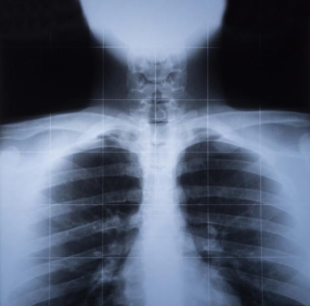 Imagem de raio-x do tórax humano