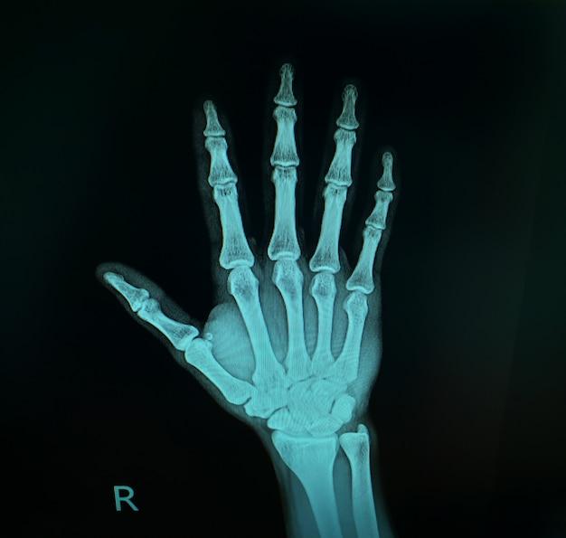 Imagem de raio-x mostra a mão direita.
