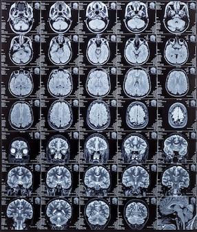 Imagem de ressonância magnética