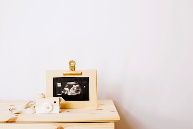 Imagem de sonograma de bebê