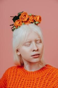 Imagem do estilo de vida de uma garota albina posando no estúdio. conceito sobre positividade corporal, diversidade e moda