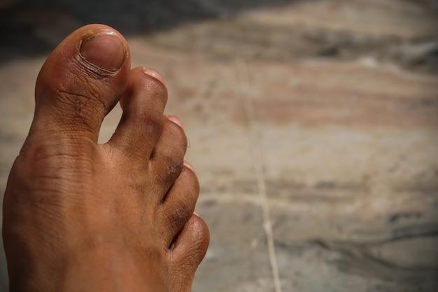 Imagem dos pés em close-up