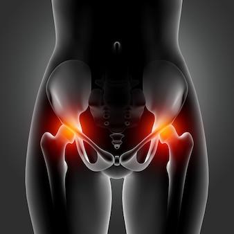 Imagem médica 3d mostrando figura feminina com ossos do quadril em destaque
