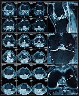 Imagens de tomografia por ressonância magnética (mrt) do joelho