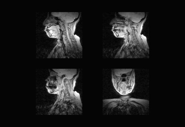 Imagens profissionais de ressonância magnética da coluna cervical e tomografia computadorizada (tc)