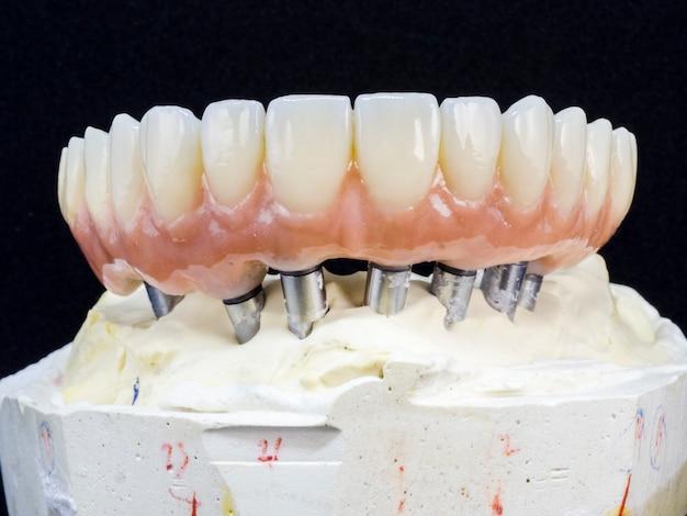 Implante de arco completo de restaurações de zircônia monolítica suportado com carga cerâmica