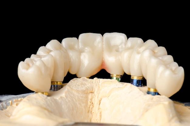 Implante de arco completo de restaurações monolíticas de zircônia