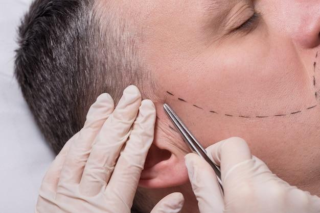 Implante de cabelo de barba procedimento de beleza para homem sênior