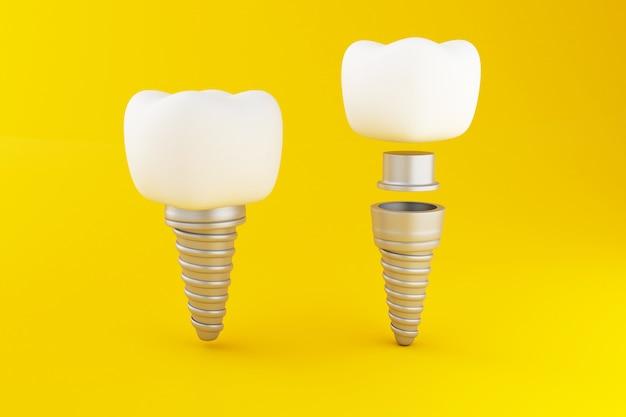Implante dentário 3d.