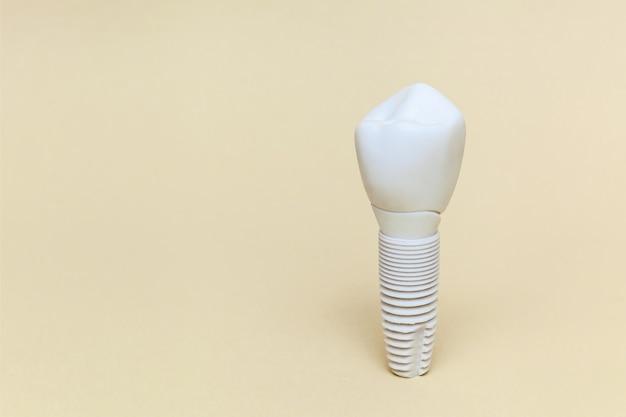 Implante dentário em um fundo bege modelo de implante dentário de dente artificial