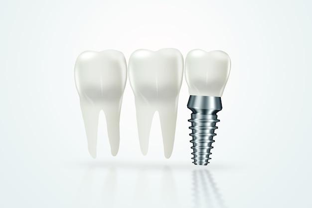 Implante dentário, pino de goma inoxidável