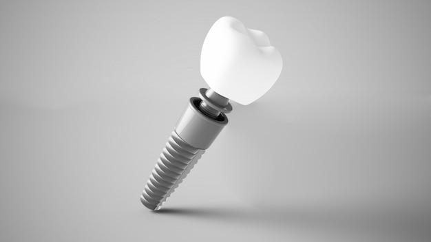 Implante dentário renderização em 3d