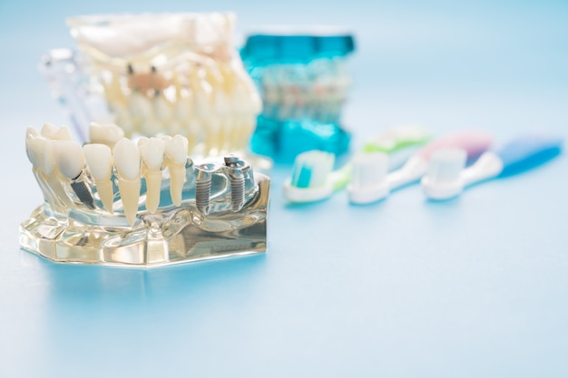 Implante e modelo ortodôntico para o aluno ao modelo de ensino-aprendizagem mostrando os dentes.