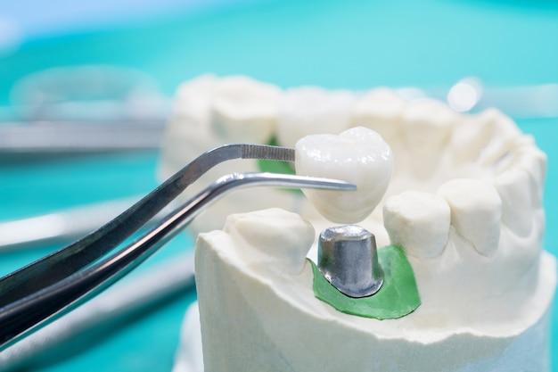 Implante modelo implante de ponte dentária e coroa.