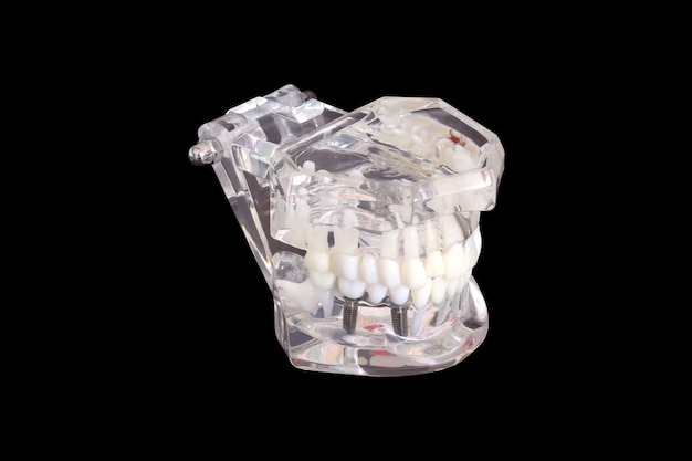 Implantes de dente dental isolado em um molde de um modelo de mandíbula humana em fundo preto com traçado de recorte