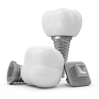 Implantes dentários isolados em branco