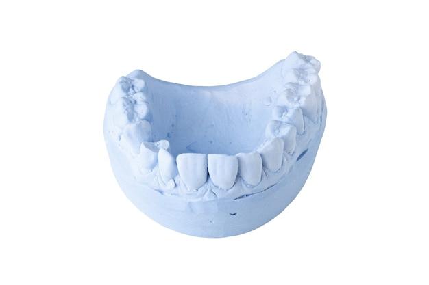 Impressão dentária isolada em fundo branco