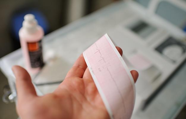 Impressão do relatório de eletrocardiograma que sai do eletrocardiógrafo na ala de parto