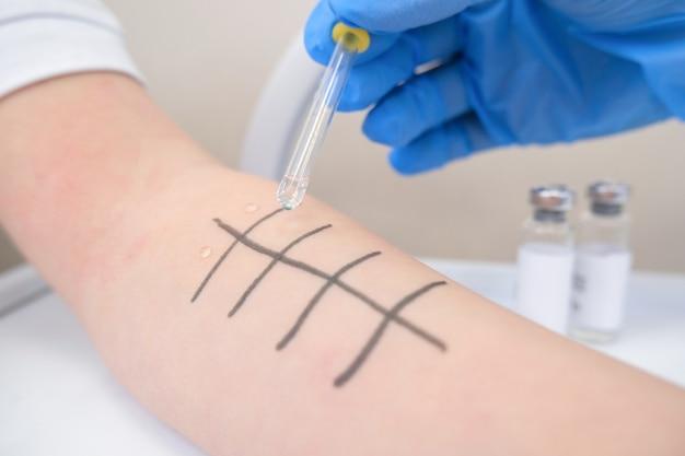 Imunologista fazendo teste de alergia à picada na pele. vermelhidão e descamação no braço.