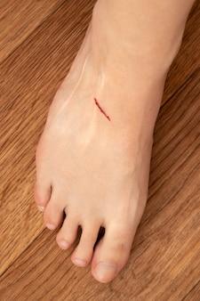 Incisão na perna