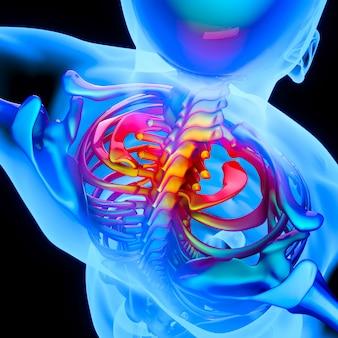 Inflamação da coluna às vértebras cervicais