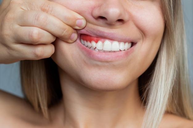 Inflamação da gengiva close de uma jovem mostrando sangramento nas gengivas em um fundo cinza. odontologia