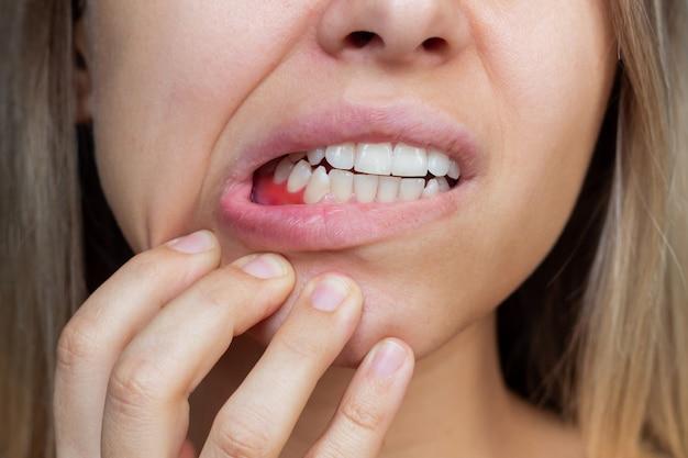 Inflamação da gengiva close de uma jovem mostrando sangramento nas gengivas. odontologia