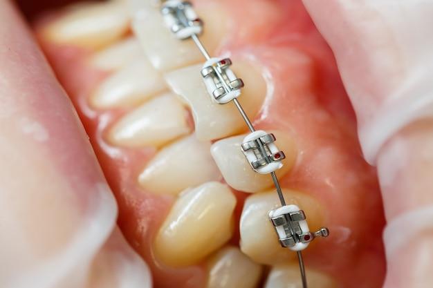 Instalação de aparelho nos dentes. tratamento odontológico ortodôntico. close dos dentes com aparelho. foto de alta qualidade