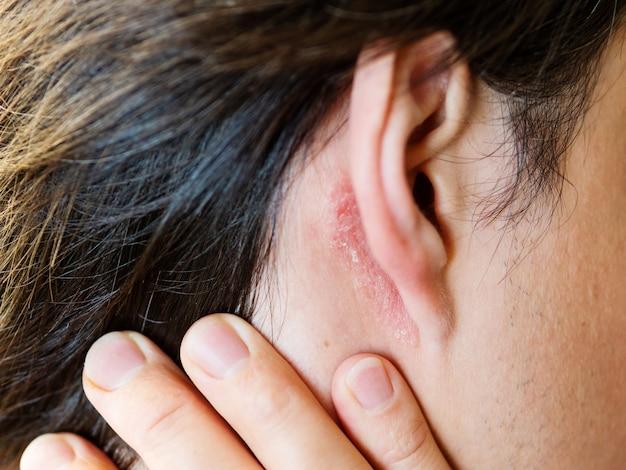 Irritação na pele atrás da orelha. homem com pele escamosa. alergia ou doença fúngica.