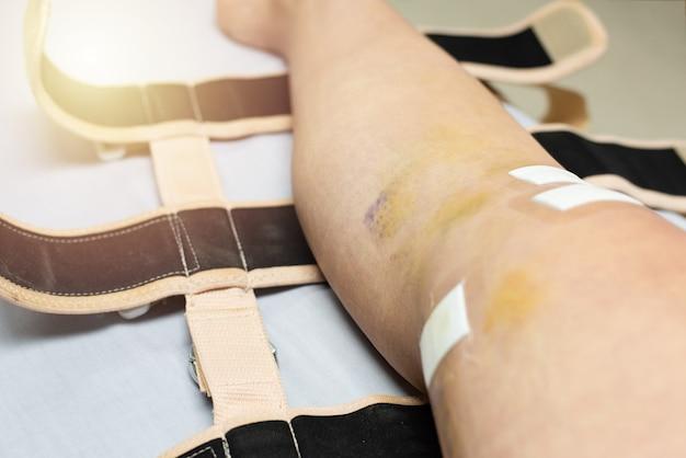 Joelho com hematoma após cirurgia de joelho e concurso. recuperando após cirurgia no joelho. efeito de cinta de joelho apertado.