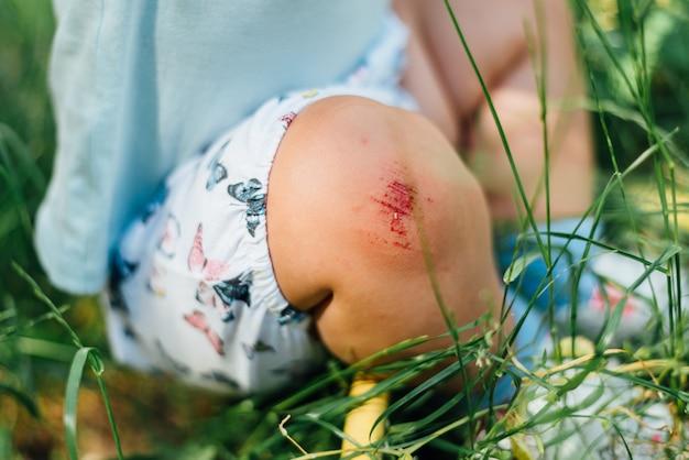 Joelho de bebê com arranhão sangrento. dia de verão na grama. problema da criança