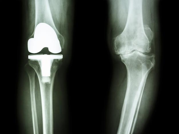 Joelho de raio-x de filme de osteoartrite joelho doente e articulação artificial
