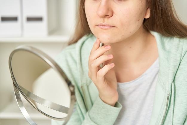 Jovem adolescente com acne, olhando no espelho e vendo espinhas na pele