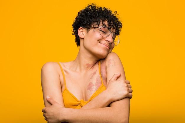 Jovem americana africano com abraços de marca de nascimento de pele, sorrindo despreocupado e feliz.