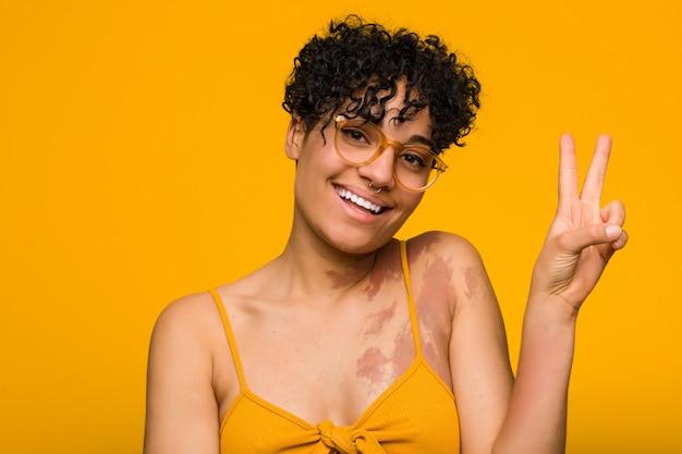 Jovem americana africano com marca de nascimento de pele alegre e despreocupada, mostrando um símbolo de paz com os dedos.