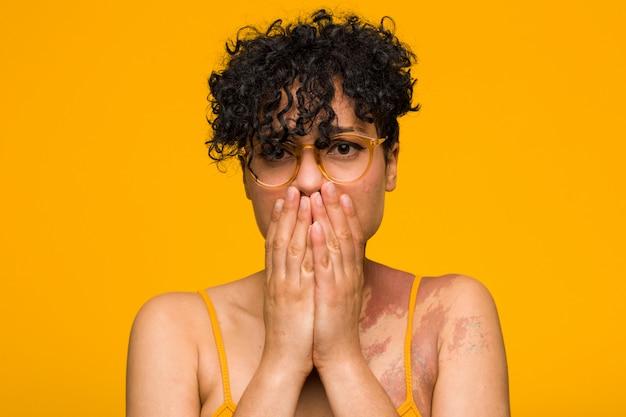 Jovem americana africano com marca de nascimento de pele com medo e medo.