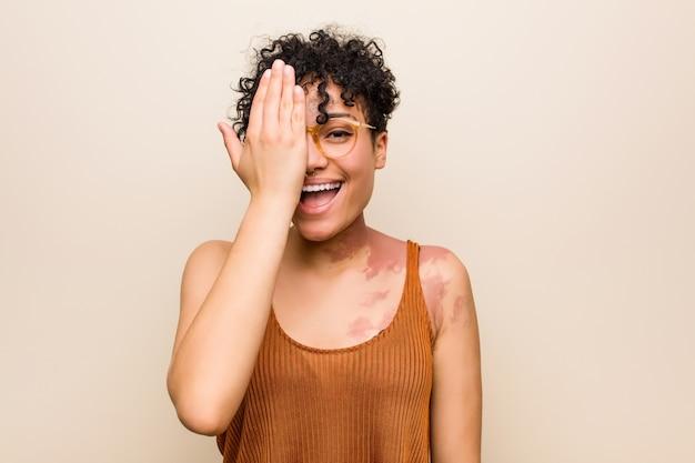 Jovem americana africano com marca de nascimento de pele se divertindo cobrindo metade do rosto com a palma da mão.