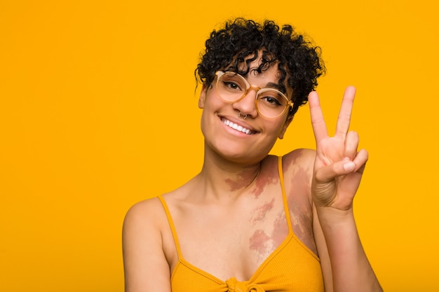 Jovem americana africano com marca de pele, mostrando o número dois com os dedos.