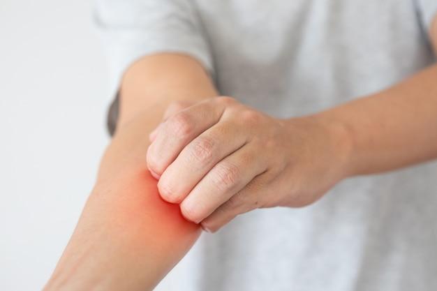 Jovem asiático coçando e coçando o braço por causa da dermatite de eczema de pele seca que coça
