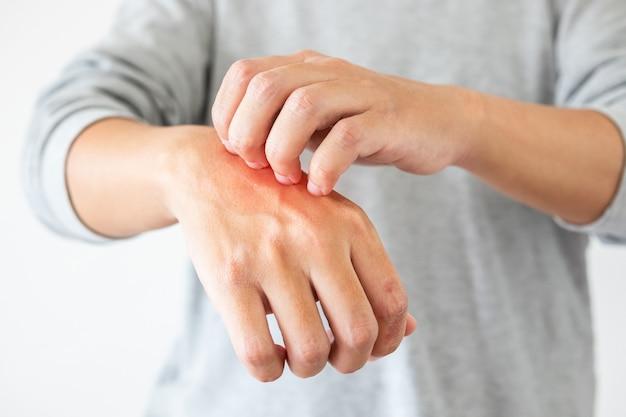 Jovem asiático com coceira e coceira na mão devido à dermatite de eczema de pele seca e coceira