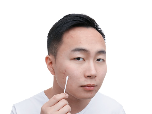 Jovem asiático com problema de pele e cotonete no fundo branco