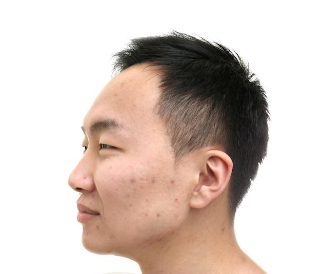 Jovem asiático com problema de pele em fundo branco