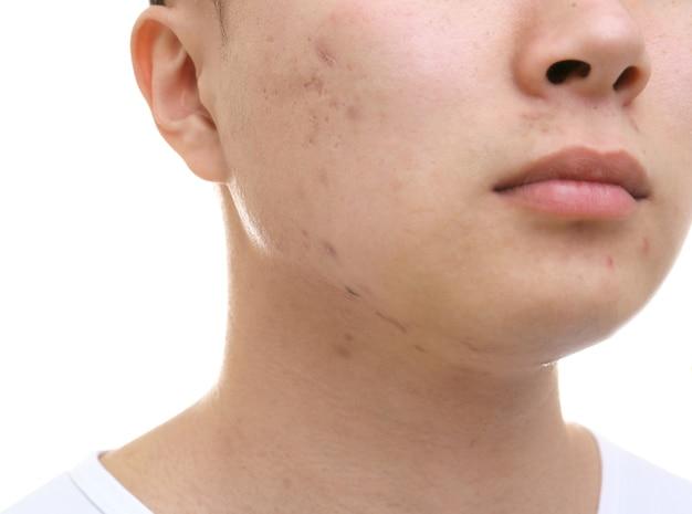 Jovem asiático com problemas de pele em fundo branco, close-up