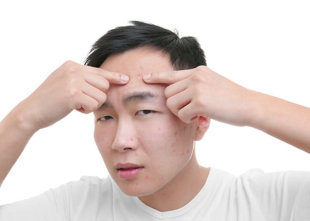 Jovem asiático exibindo espinhas, em fundo branco