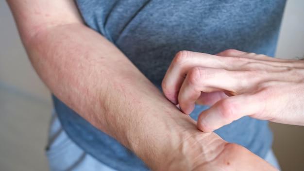 Jovem coça o antebraço vermelho irritado com a mão, sofrendo de coceira irritante na pele, em pé sobre fundo bege.