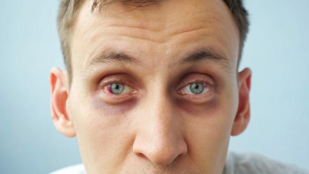 Jovem com olhos vermelhos olhando para a câmera