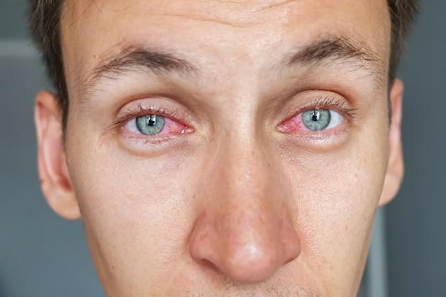Jovem com olhos vermelhos
