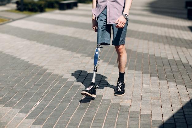 Jovem deficiente com prótese de pé caminha ao longo da rua.